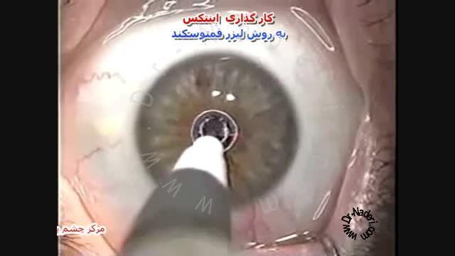 عمل رینگINTACSبه روش فمتوسکند-سایت چشم پزشکی دکترناد ری