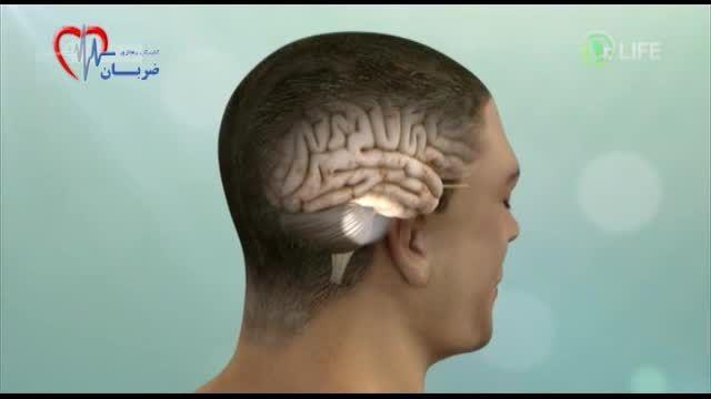دکتر لایف- تومور مغزی