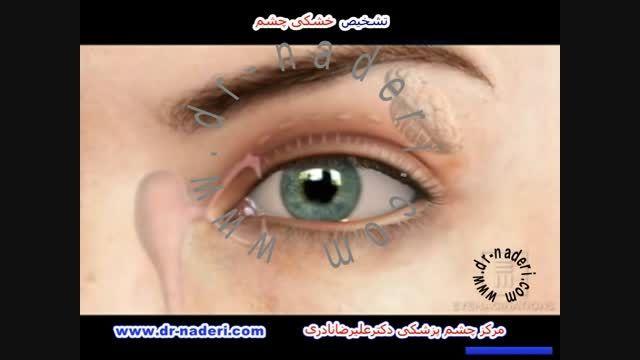 تشخیص خشکی چشم - مرکز چشم پزشکی دکتر رضا نادری