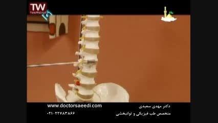 انواع دردهای ستون فقرات : علت و درمان