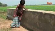 عجیب الخلقه ترین انسان(هند)