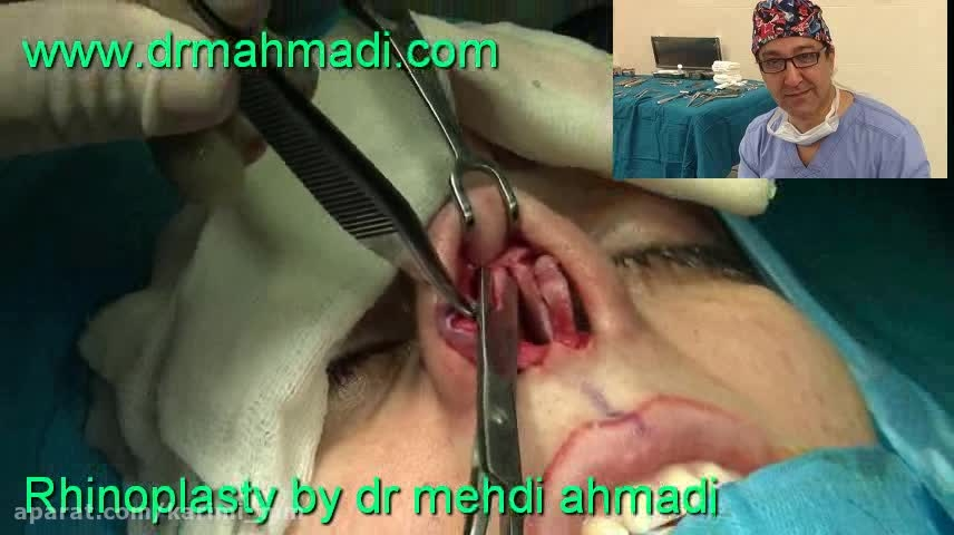 عمل زیبایی بینی(rhinoplasty)توسط متخصص گوش وحلق بینی10