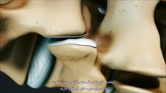 درمان درد مفاصل بین مهره ای کمر با تزریق