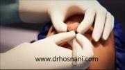 فیلم انیمیشن کارتونی جراحی بینی دکتر حسنانی