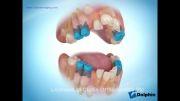دکتر مسعود داودیان :: کشیدن سریال دندانها در ارتودنسی