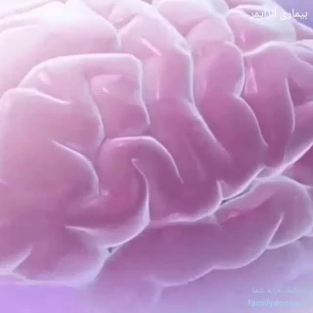 بیماری آلزایمر یا دمانس پیری مغز