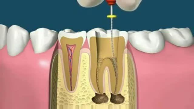 ویدیوی جالبی از مراحل درمان ریشه دندان (عصب کشی دندان)