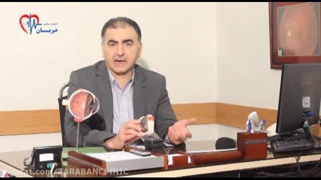 دکتر فرید کریمیان- مراقبت های لازم پس از پیوند قرنیه
