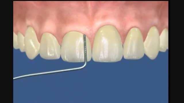 جراحی لثه مرکز دندانپزشکی و زیبایی دکتر زهدی