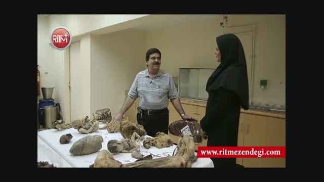 عجیب ترین شغل  در ایران: از مغز تکه تکه شده تا جنینی