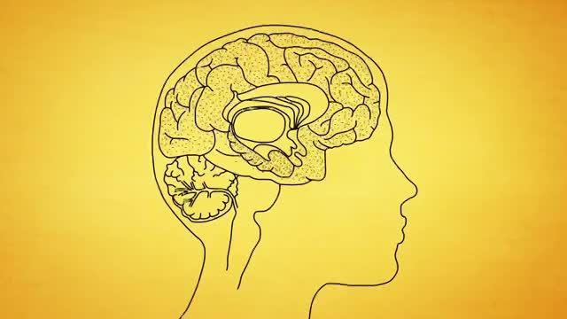 بیماری آلزایمر را بهتر بشناسید