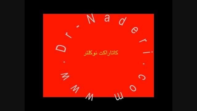 کاتاراکت نوکلئار - سایت چشم پزشکی دکتر علیرضا ناد ری