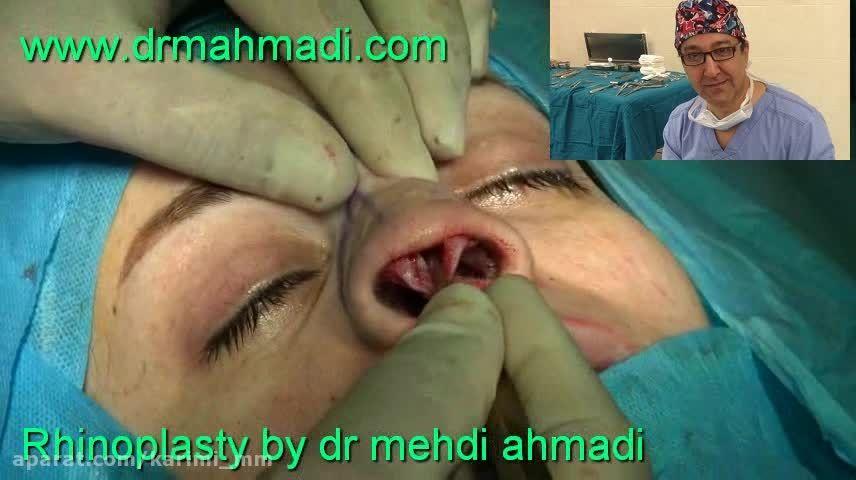 عمل زیبایی بینی(rhinoplasty)توسط متخصص گوش وحلق بینی25