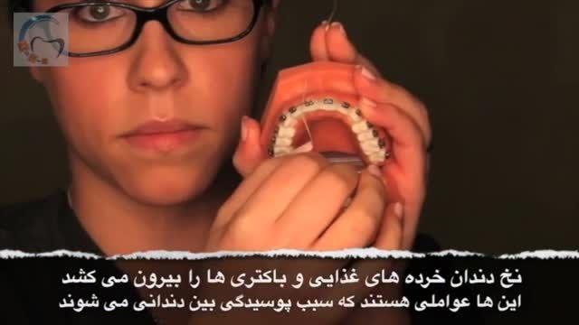 روش صحیح مسواک زدن و نخ کشیدن در ارتودنسی |دکتر داودیان
