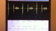 صداهای قلبی- استنوز دریچه میترال