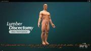 انیمشن عمل جراحی  باز دیسک کمر-دکتر دقاق زاده