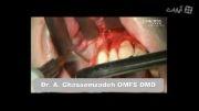 جراحی برای تسریع در درمان ارتدنسی