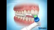 نحوه چسباندن دستگاه های ارتودنسی به دندان ها