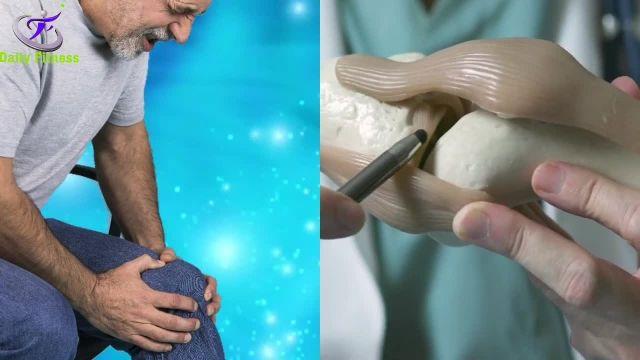 دو ترکیب فوق العاده موثر برای تسکین درد آرتروز