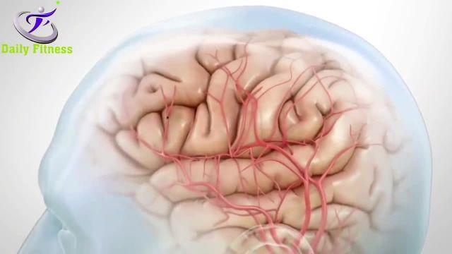 مواد غذایی که دشمن مغز هستند