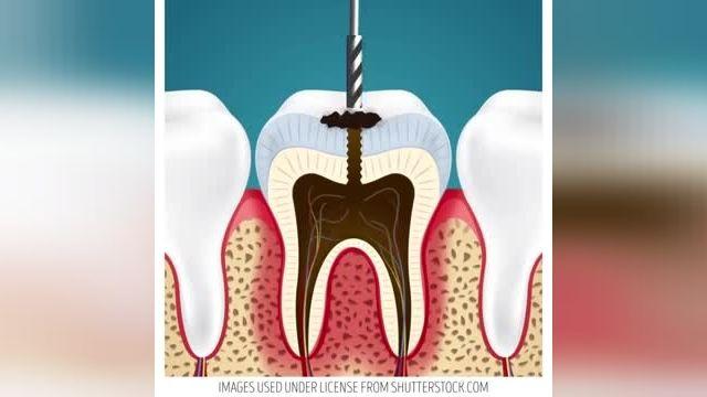 معرفی نکات کلیدی سلامت - 17 ترفند برای مراقبت از دندانها