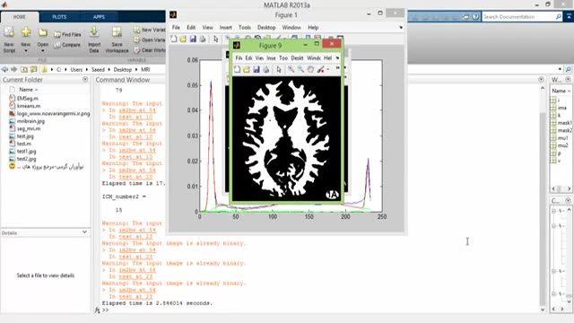 پروژه قطعه سازی تصاویر مغزی با MATLAB