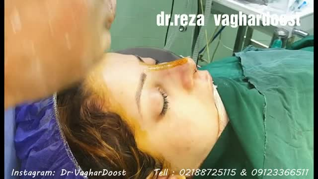 جراحی بینی توسط دکتر رضا وقردوست