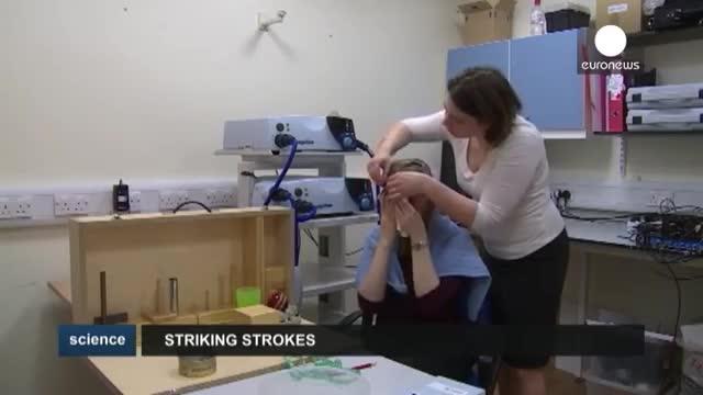 روش تازه محققان برای درمان بیماران سکته مغزی