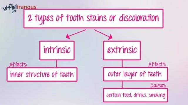 راز های سفید کردن دندان ها