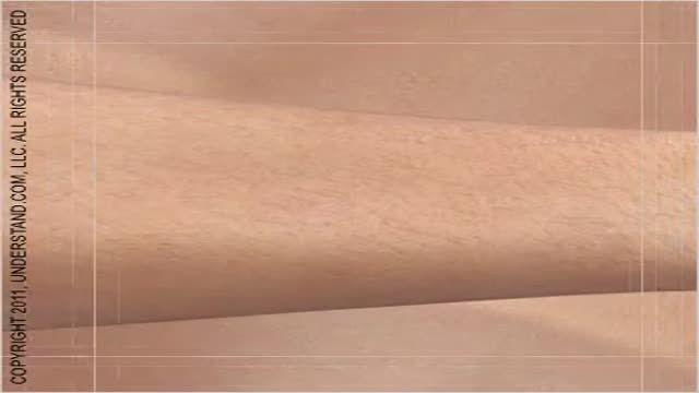 لیزر موهای زاید - لیزر
