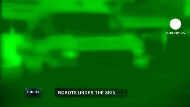 پیشرفت ها و مزایای عمل جراحی روباتیک
