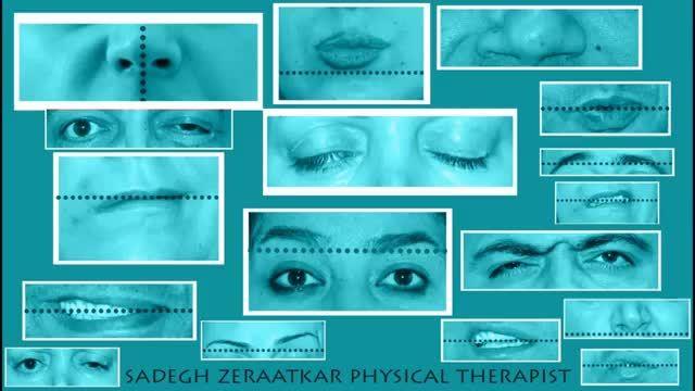فلج عصب هفت صورت