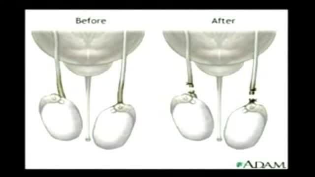 vasectomy procedure.بستن لوله های اسپرم در مردان