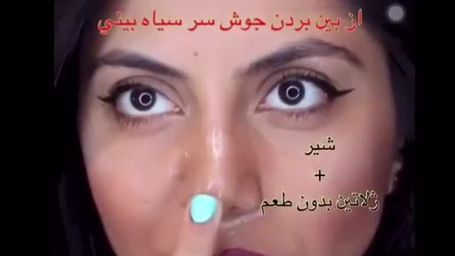 از بین بردن جوش سر سیاه بینی با شیر (ویدیو + توضیح)