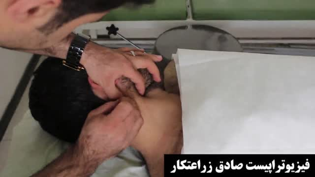 درمان سر درد با طب سوزنی درای نیدلینگ، فیزیوتراپیست صادق زراعتکار