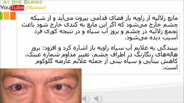 بیماری خطرناک چشمی را بشناسید