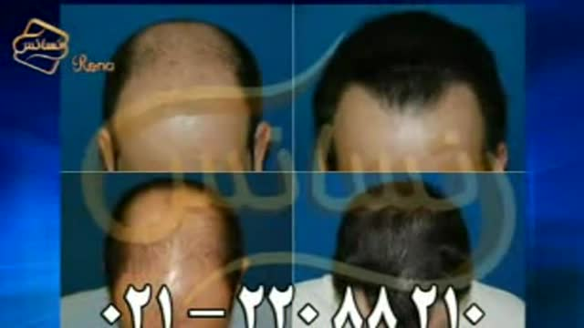 فیلم کاشت مو به روش SUT مرکز مو رنسانس