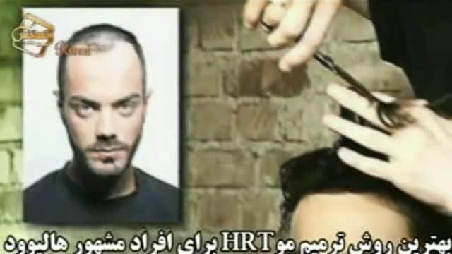 فیلم ترمیم مو به روش HRT  مرکز تخصصی مو رنسانس