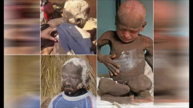پوست بدن این پسر سنگ تولید می کند!/ یک بیماری دردناک و ناشناخته گریبان یک پسربچه را گرفته