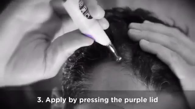 نحوه مصرف محلول نیوژنیک ویشی جهت درمان ریزش مو و رویش مجدد