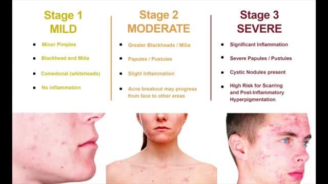 علل و درمان آکنه و جوش صورت