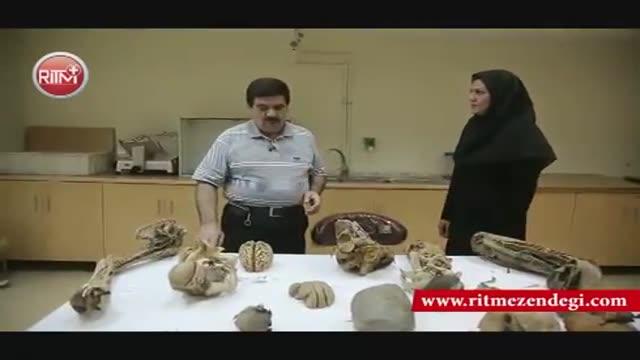 گزارشی از یکی از عجیب ترین شغل ها در ایران: از مغز تکه تکه شده تا جنینی که اگر زنده بود 23 سالش بود