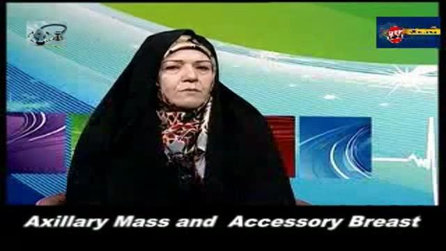 Axillary Mass and Accessory Breast.توده های زیر بغل و پستان فرعی