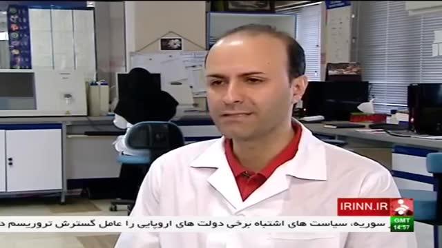 درمان سوختگی با سلول های بنیادی در ایران