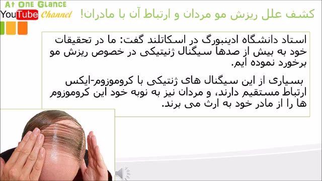 کشف علل ریزش مو مردان و ارتباط آن با مادران