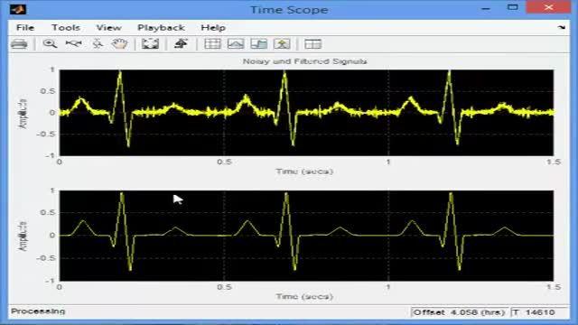 پروژه حذف نویز فرکانس بالا از سیگنال ECG با MATLAB