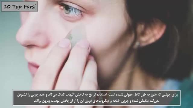 12 روش آسان و سریع برای درمان جوش های صورت