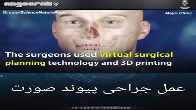 عمل زیبایی صورت با استفاده از پیوند صورت و پرینتر سه بعدی