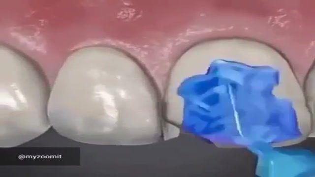نحوه لمینیت کامپوزیت دندان