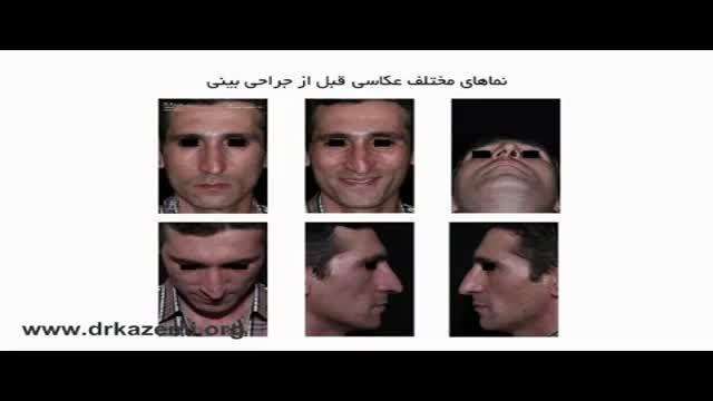 تفاوت بینی کج از نظر ظاهری و انحراف بینی